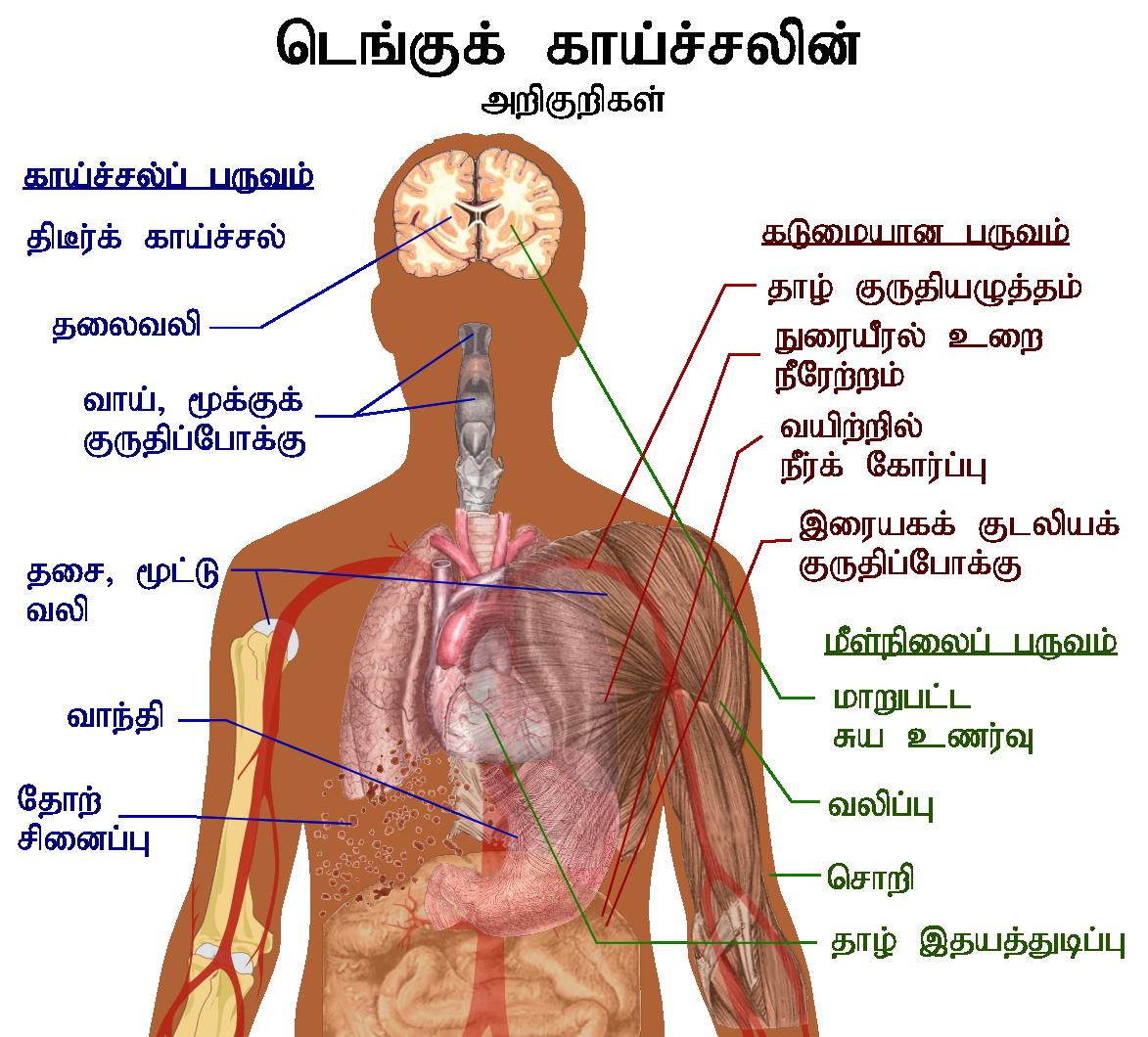 Dengue_fever_symptoms_tamil